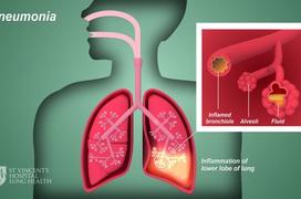 Triệu chứng và chẩn đoán các biến chứng viêm phế quản