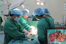 Phẫu thuật cắt dạ dày trong điều trị ung thư được tiến hành như thế nào?