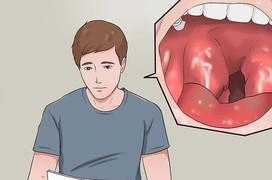Đối tượng nào dễ mắc bệnh viêm họng nhất?