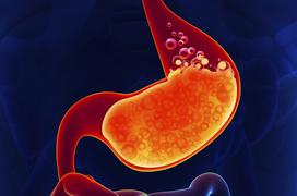 Nóng rát dạ dày: Có thể là dấu hiệu sớm ung thư dạ dày