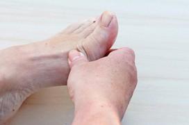 Bệnh gout có mấy giai đoạn?