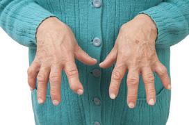 Bệnh gout và những câu hỏi thường gặp