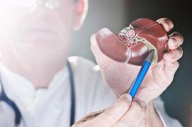 Biến chứng suy gan do viêm gan B: Nhận biết sớm để điều trị kịp thời