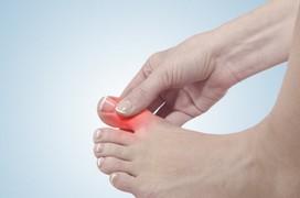Tìm hiểu về cơ chế gây ra bệnh gout và các nhóm bệnh gout thường gặp