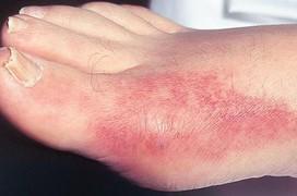Phân loại bệnh gout và đặc điểm của bệnh gout nguyên phát và bệnh gout thứ phát