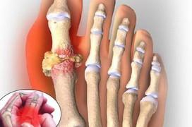 Những điều cần biết về cơn gout cấp tính