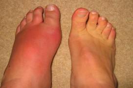 Bệnh gout: dấu hiệu, nguyên nhân, điều trị và phương pháp phòng ngừa