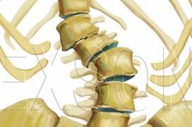 Bệnh cong vẹo cột sống thắt lưng do thoái hóa là gì?