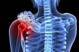 Tìm hiểu chung về bệnh ung thư xương nguyên phát
