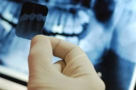 Điều trị ung thư xương nguyên phát hạn chế tối đa di căn