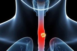 Tổng quan về bệnh ung thư thực quản: Nguyên nhân, triệu chứng, phương pháp chẩn đoán
