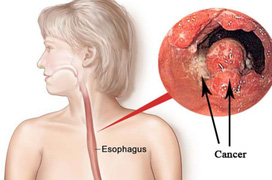 Điều trị ung thư thực quản theo giai đoạn bệnh