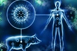 Cúm lợn (H1N1): Triệu chứng, nguyên nhân, chẩn đoán và điều trị
