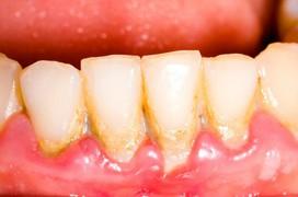 Vôi răng - tác hại và cách phòng ngừa