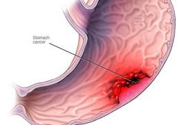 Ăn uống như thế nào để phòng tránh ung thư dạ dày?