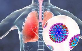 Đau ngực, khó thở, tím tái môi là một trong những biến chứng viêm phổi do cảm cúm cần lưu ý
