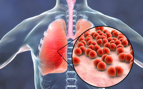 Nguy hiểm khôn lường với biến chứng viêm phổi do sởi