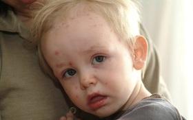 Bệnh sởi: Những dấu hiệu nhận biết bệnh sởi không nên bỏ qua