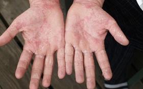 Biến chứng da do dùng Corticoid bôi ngoài da và phục hồi da bị nhiễm Corticoid bằng cách nào?