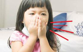 Thời tiết chuyển mùa, số lượng trẻ nhiễm virus hợp bào hô hấp tăng cao: Dấu hiệu, biện pháp điều trị và phòng ngừa