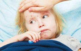 6 điều cần lưu ý khi chăm sóc người bị bệnh sởi tại nhà