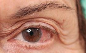 Các hướng dẫn chăm sóc giảm nhẹ triệu chứng đau mắt đỏ mà người bệnh nhất định phải biết