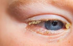 Cần làm gì khi đau mắt đỏ ngủ dậy 2 mí mắt bị dính vào nhau?