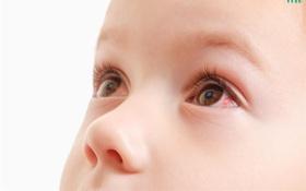 Điều trị đau mắt đỏ ở trẻ em bằng những loại thuốc nào?