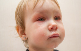 Tổng hợp các câu hỏi thường gặp về bệnh đau mắt đỏ ở trẻ nhỏ