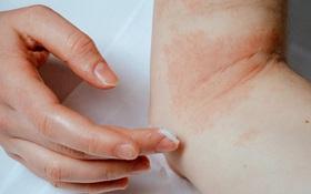 Chàm da là gì? Chăm sóc da bị chàm mùa hanh khô như thế nào?