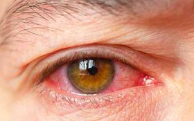 So sánh điểm giống và khác nhau giữa đau mắt đỏ và viêm màng bồ đào để không nhầm lẫn trong điều trị