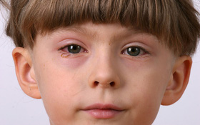 Đau mắt đỏ và tăng nhãn áp: Phân biệt bệnh để điều trị đúng cách