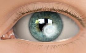 Đau mắt đỏ do kính áp tròng là gì? Bị đau mắt đỏ có được đeo kính áp tròng không?