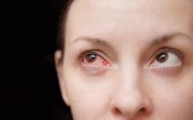Những kiến thức cần biết về thuốc điều trị đau mắt đỏ ở phụ nữ mang thai?