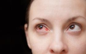 Tìm hiểu chung về bệnh đau mắt đỏ ở phụ nữ mang thai