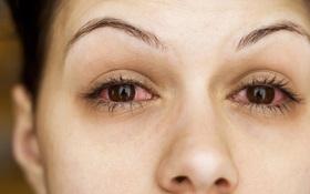 Đau mắt đỏ và viêm củng mạc: Những điều cần biết để tránh nhầm lẫn
