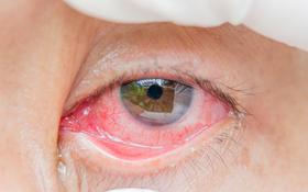Phòng ngừa biến chứng đau mắt đỏ: Cẩn trọng trong việc tự điều trị và dùng thuốc!