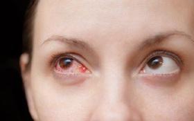 5 điều cần làm nếu nghi ngờ bị đau mắt đỏ, đặc biệt là điều số 3!