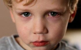 Đau mắt đỏ: Những biện pháp phòng tránh lây nhiễm từ người bệnh