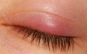 Sưng mi mắt: Đau mắt đỏ có phải nguyên nhân phổ biến nhất?