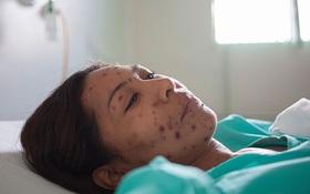 Các biến chứng của bệnh thủy đậu: Nguy cơ và cách phát hiện