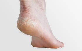 Nứt gót chân mùa hanh khô: Bệnh về da phổ biến nhưng không phải ai cũng biết cách đối phó