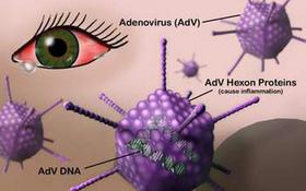 Bệnh viêm kết mạc do virus (đau mắt đỏ do virus) là gì? Đau mắt đỏ do virus có uống thuốc kháng sinh được không?