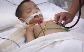 Tay chân miệng độ 4: Biểu hiện lâm sàng và hướng xử trí theo hướng dẫn của Bộ Y tế