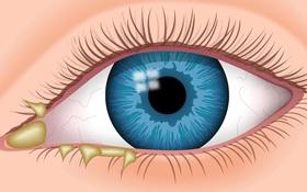 Khi nào mắt có nhiều ghèn là dấu hiệu của bệnh đau mắt đỏ? Tại sao mắt có nhiều ghèn (gỉ mắt)?