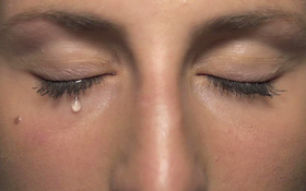 Chảy nước mắt sống là gì? Chảy nước mắt sống có phải làm dấu hiệu của bệnh đau mắt đỏ không?
