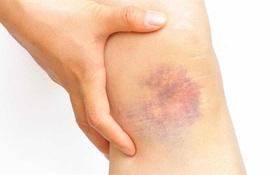 Khắc phục các vết bầm trên da, làm thế nào để làm giảm vết bầm nhanh chóng
