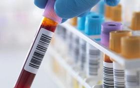 Có nên thực hiện xét nghiệm ung thư dù chưa có dấu hiệu đáng lo ngại