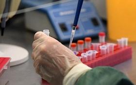Xét nghiệm thấy virus corona cả khi người nhiễm chưa phát bệnh