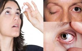 Chớ khinh suất khi bị đau nhức mắt, nguyên nhân và cách điều trị đau mắt